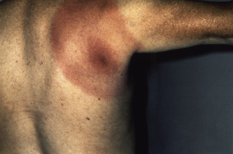 Not All Erythema Migrans Lesions are Lyme Disease - The ...